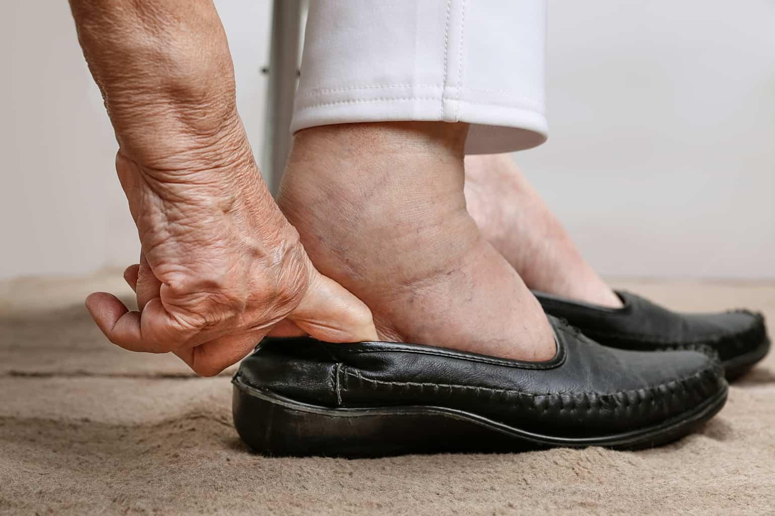 swollen ankles closeup