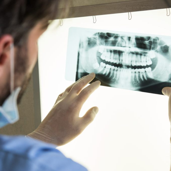 dentist viewing dental x-ray